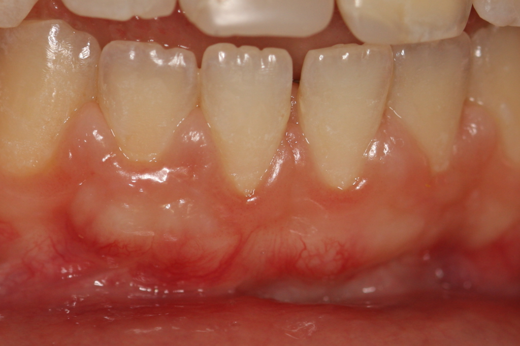 Углубление на зубах у десен
